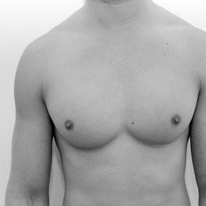 Reducción de pechos Image
