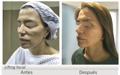 Antes y después Lifting facial